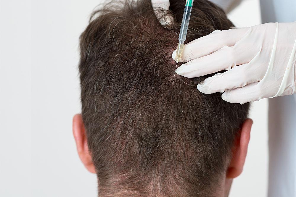 PRP Therapie Haare