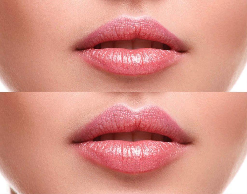 Russian Lips und Lippen aufspritzen